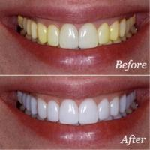 Cheap LED Teeth Whitening Kit -S Home Use LED Teeth Whitening Kit for sale