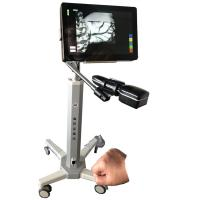 China Infrared Camera Imaging Infrared Vein Locating Device Safety With No Laser For Hospital and Clinic on sale
