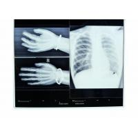 Quality Low Fog 14in * 17in Medical Imaging Dry X-ray Transparency Thermal Printer Film wholesale