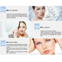 Quality CE Marked Cross Linked Hyaluronic Acid Fillers Restore Youthful Skin Injection Derm Deep Wrinkles for beauty salon wholesale