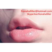 Quality Hyaluronic Acid filler Used as a Lip Filler in Plastic Surgery wholesale