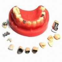 Quality Dental Samples, Zirconia, PFM, Inlay, FMC, Captet, Glod, Emax wholesale