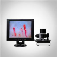 Quality LCD Display Health Analyzer Machine Clinical Blood Analysis Microcirculation Microscope wholesale