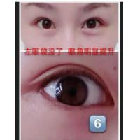 China CE Certificate Medical Sodium Hyaluronate/Hyaluronic Acid Gel (For Eye Surgery Viscoelastic) on sale