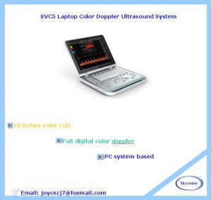 China Laptop Color Doppler Ultrasound System on sale