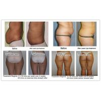 super diode laser slimming machine before after picture