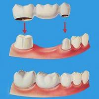 Quality Ni - Cr alloy porcelain teeth One-time payment wholesale